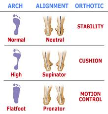 High Arch Foot