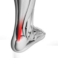 Achilles tendiopathy