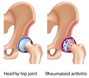 Rheumatoid Arthritis Hip