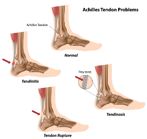 Achilles Tendon Injuries