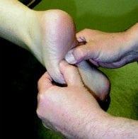 Cuboid syndrome