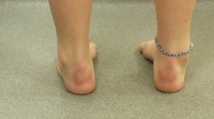 Foot Supination