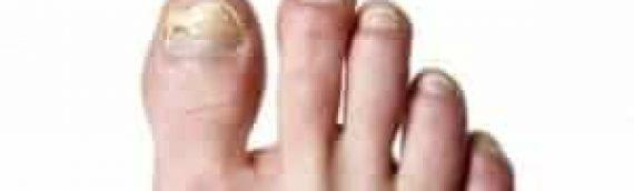New Treatment – Lacuna Fungal Nail Treatment